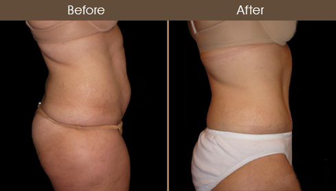 Before And After Abdominoplasty Surgery In NY