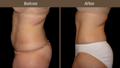 Before & After Abdominoplasty Surgery In NY