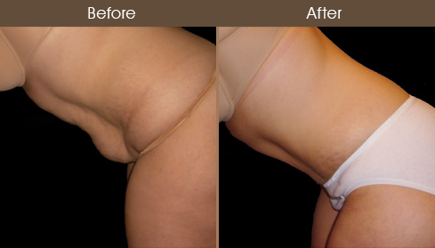 NYC Tummy Tuck Before & After