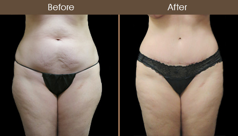 NYC Tummy Tuck Surgery Before And After