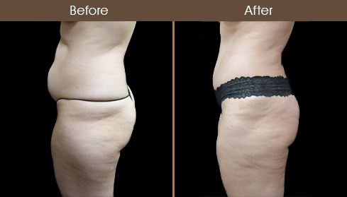 NYC Abdominoplasty Before And After