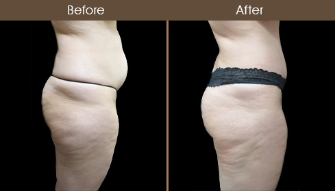 NYC Tummy Tuck Surgery Before & After