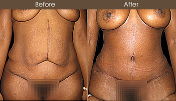 NYC Abdominoplasty Before & After