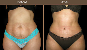 NYC Abdominoplasty Surgery Before & After