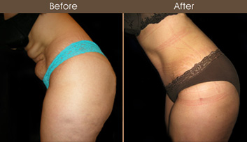 New York Tummy Tuck Surgery Before And After