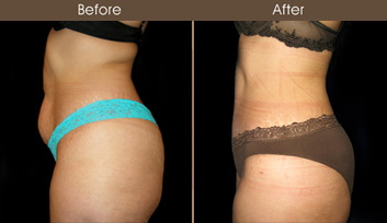 New York Tummy Tuck Before & After