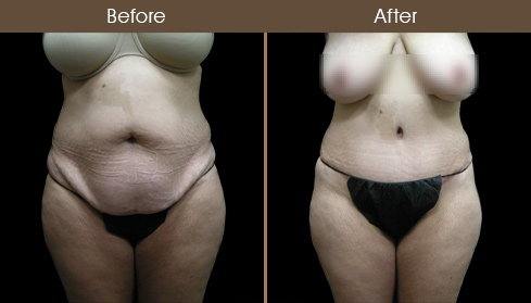New York Tummy Tuck Surgery Before & After