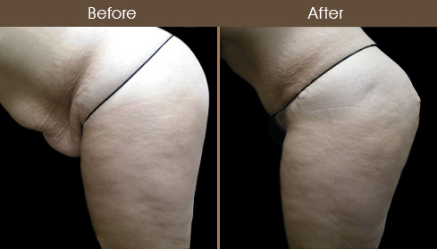 New York Abdominoplasty Before & After