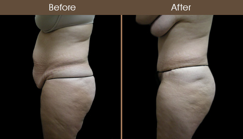 New York Abdominoplasty Before And After
