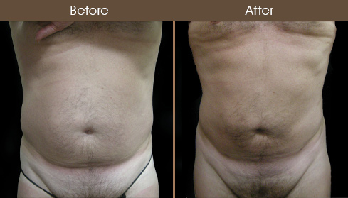 Before And After Liposuction Surgery In New York City