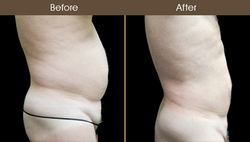 Before & After Liposuction Surgery In New York City