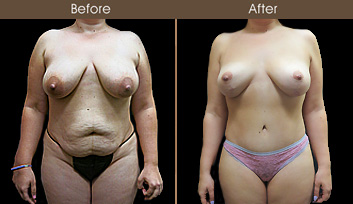 Before And After Mommy Makeover Surgery In NY