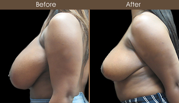New York Breast Reduction Surgery Results