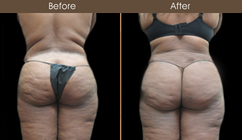 New York City Abdominoplasty Before And After