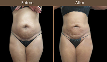 Before And After Liposuction Surgery In NY