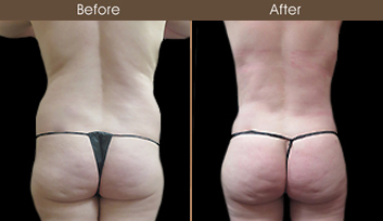Before & After NYC Liposuction