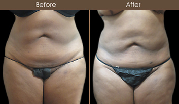 New York Liposuction Before & After