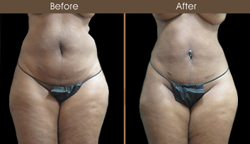 Before And After New York City Liposuction
