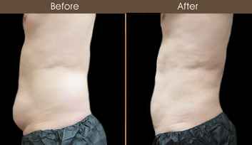 Male Lipo Before & After