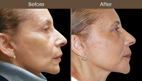 Face Lift Results