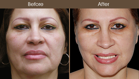 Face Lift Surgery Results