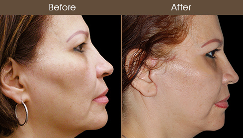 Before And After Face Lift Surgery