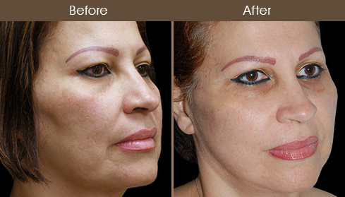 Before & After Face Lift Surgery