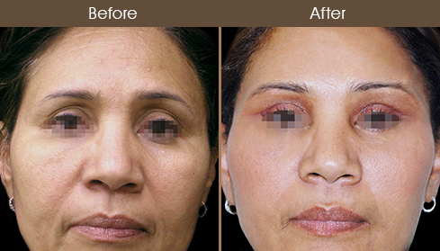 Facelift Treatment Before And After
