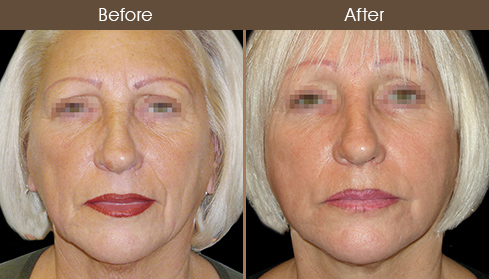 Facelift Treatment Before & After