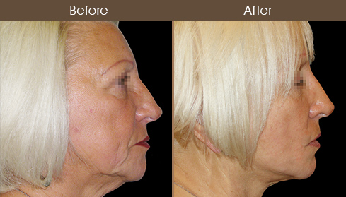 Facelift Treatment Results
