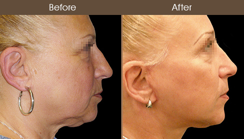Face Lift Treatment Before And After
