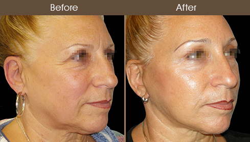 Face Lift Treatment Before & After