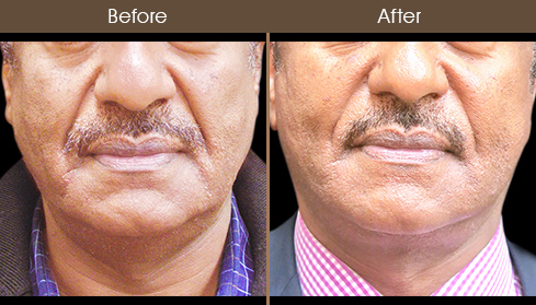 Face Lift Treatment Results