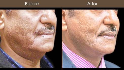 Before & After Face Lift Treatment