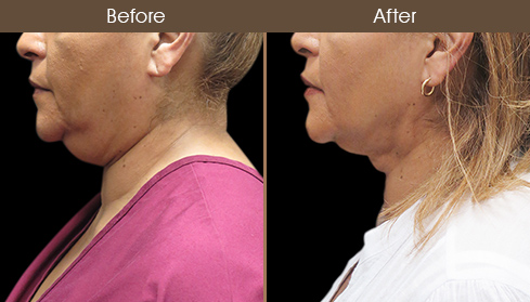 LazerLift Neck Treatment Before & After