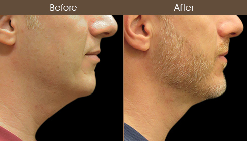 Before And After Laser Neck Lift