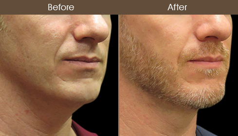 Before And After Neck Lift Treatment