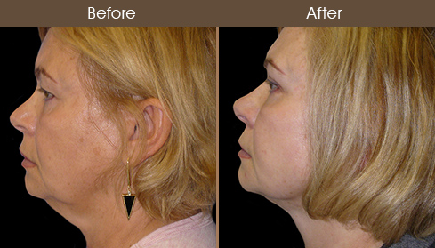 Necklift Surgery Before And After