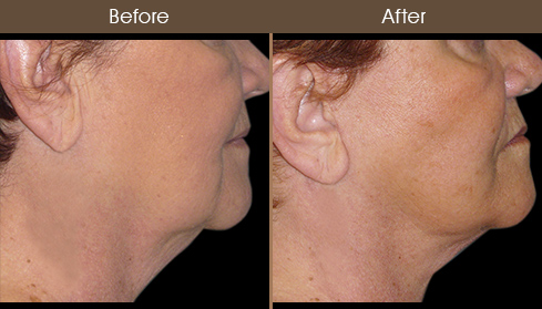 Necklift Surgery Results