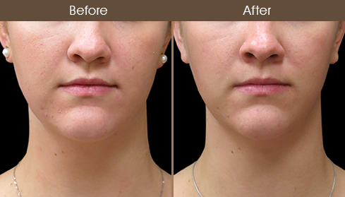 Before And After Scarless Facelift