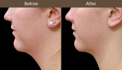 Before & After Scarless Facelift