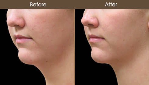 Scarless Face Lift Before And After