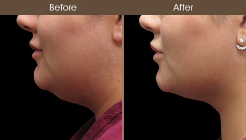 Before & After Scarless Face Lift