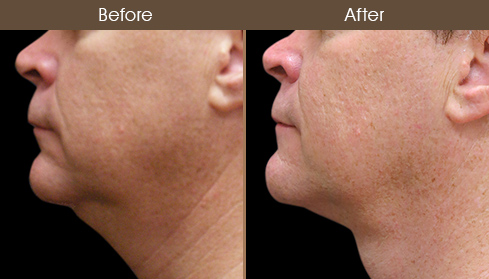 Scarless Neck Lift Before & After