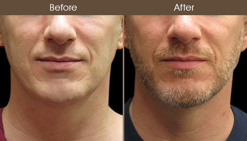 Before And After Scarless Neck Lift