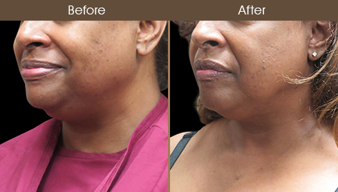 Before And After Scarless Neck Lift Surgery