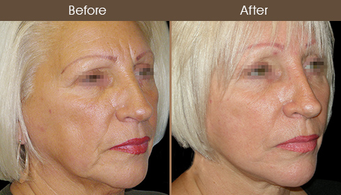 Before And After Facelift Treatment