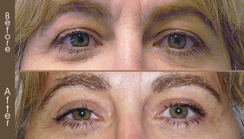 Before And After Blepharoplasty In NYC