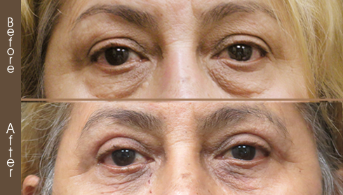 Before & After Blepharoplasty In NYC