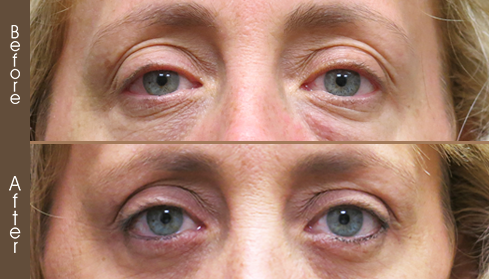 Before & After Blepharoplasty Surgery In NYC